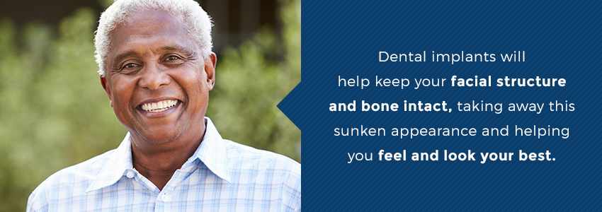 Dental Implants Vs  Dentures | Hiossen® Implant