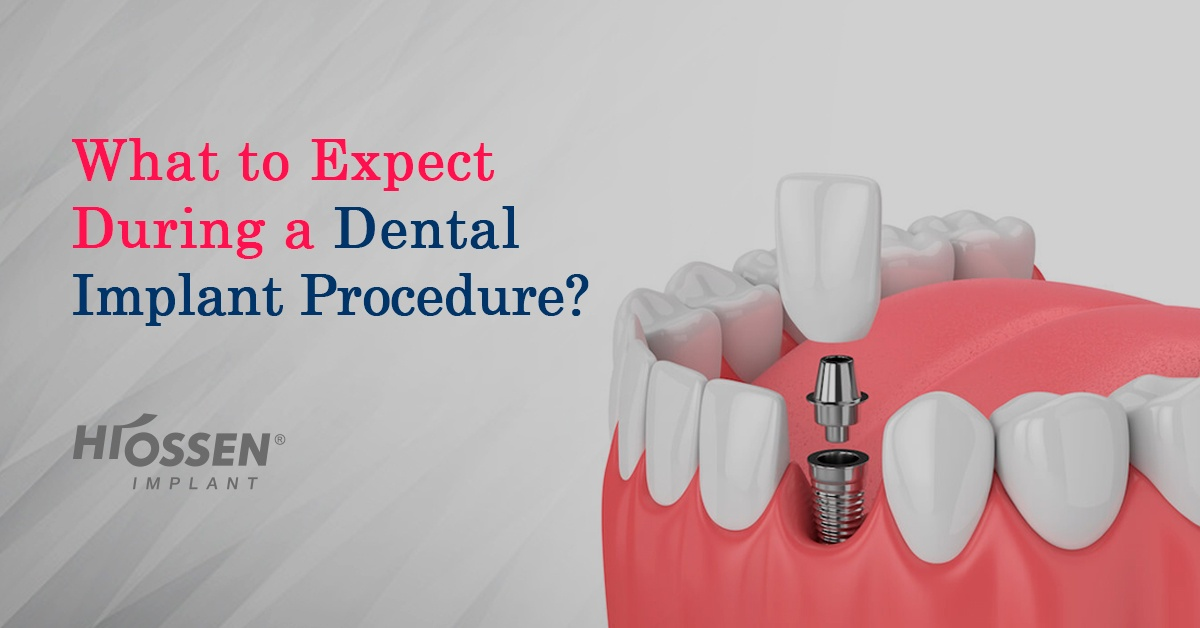 What To Expect During A Dental Implant Procedure Hiossen